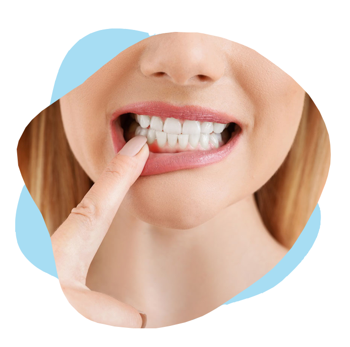 Gum Disease treatment in Gardner MA