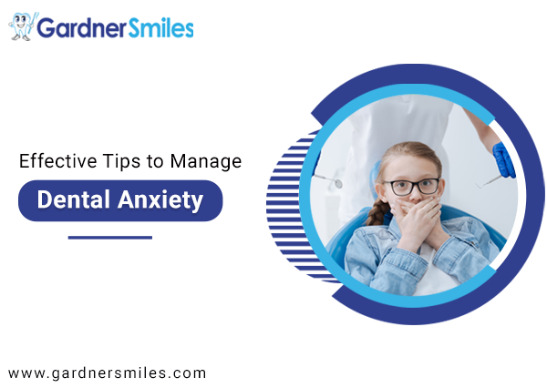 Effective Tips to Manage Dental Anxiety
