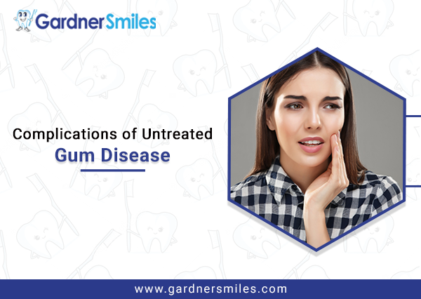 Complications of Untreated Gum Disease